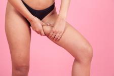 Les solutions anti-frottements des cuisses pour l'été