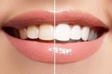 Quelles sont les techniques utilisées en matière de blanchiment dentaire ?